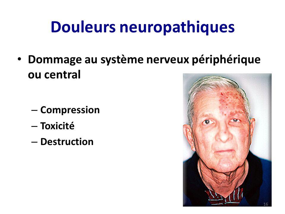 Douleurs neuropathiques Dommage au système nerveux périphérique ou central – Compression – Toxicité – Destruction 16
