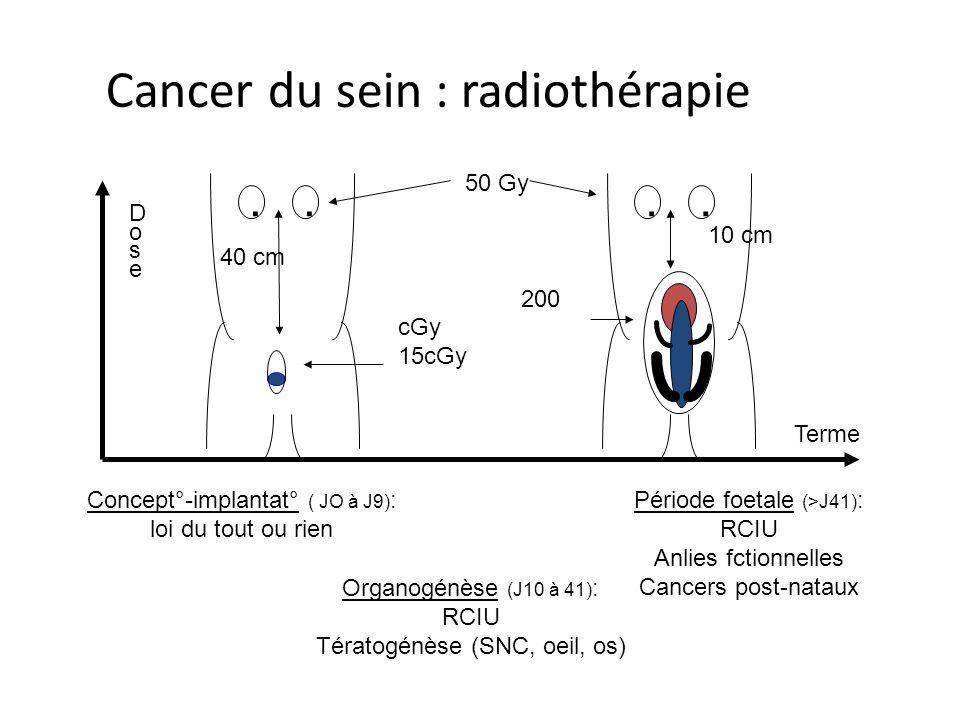 Cancer du sein : radiothérapie.... 50 Gy 200 cGy 15cGy 40 cm 10 cm Concept°-implantat° ( JO à J9) : loi du tout ou rien Organogénèse (J10 à 41) : RCIU