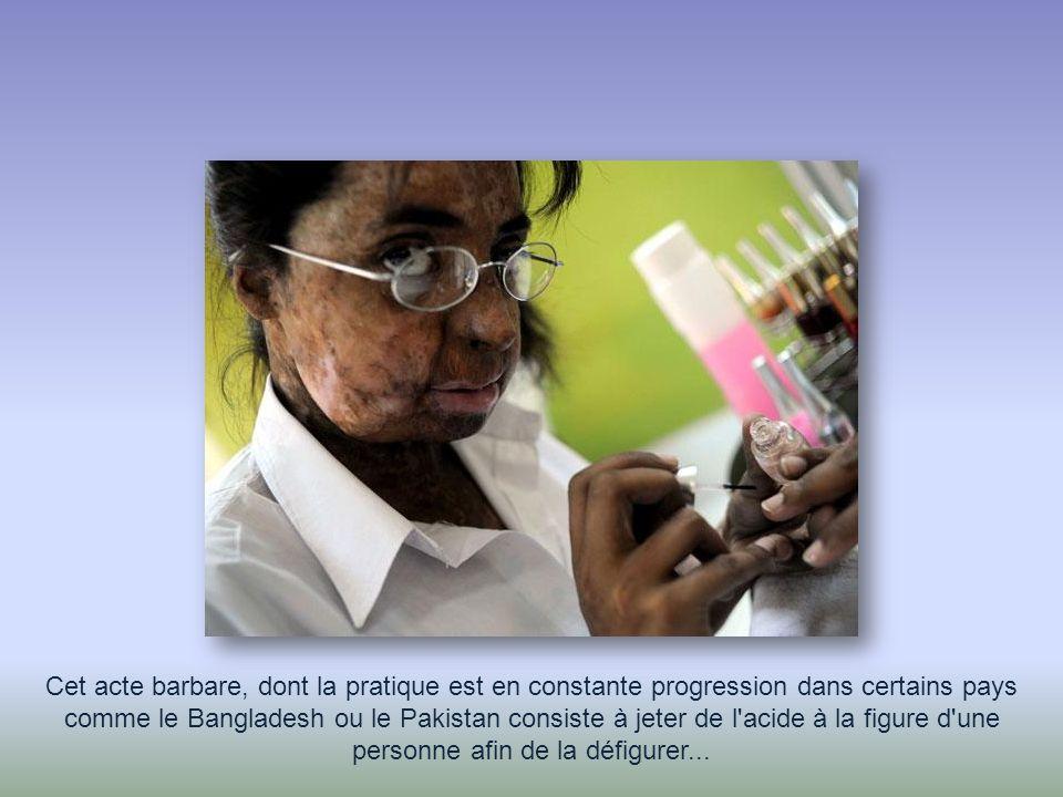 Cet acte barbare, dont la pratique est en constante progression dans certains pays comme le Bangladesh ou le Pakistan consiste à jeter de l acide à la figure d une personne afin de la défigurer...
