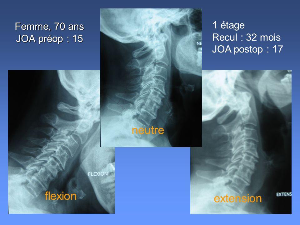 Femme, 70 ans JOA préop : 15 1 étage Recul : 32 mois JOA postop : 17 neutre flexion extension