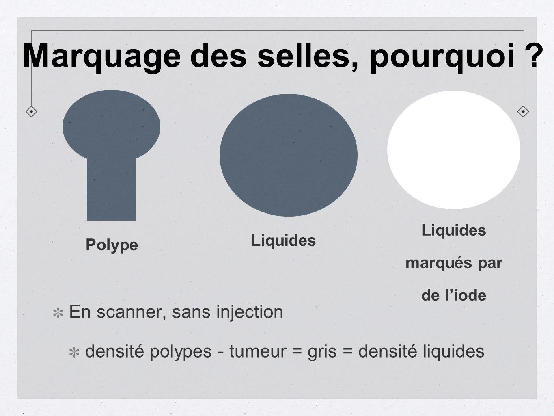 En scanner, sans injection densité polypes - tumeur = gris = densité liquides Polype Liquides marqués par de liode Marquage des selles, pourquoi