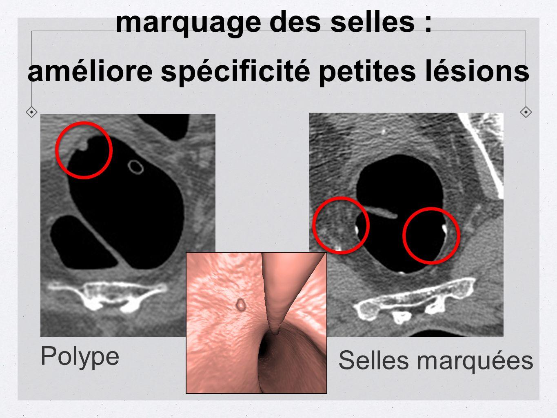 Selles marquées Polype marquage des selles : améliore spécificité petites lésions