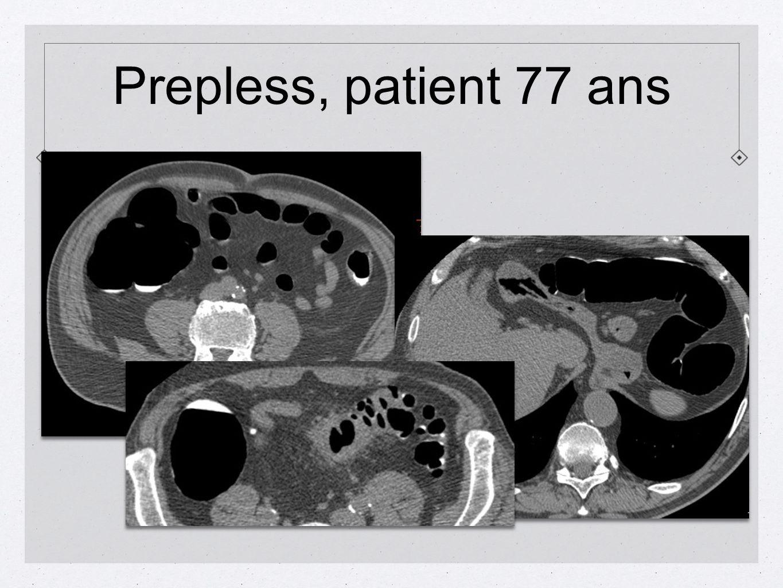 Prepless, patient 77 ans