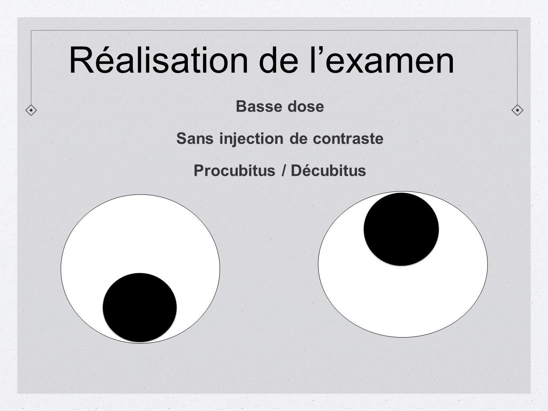 Basse dose Sans injection de contraste Procubitus / Décubitus Réalisation de lexamen
