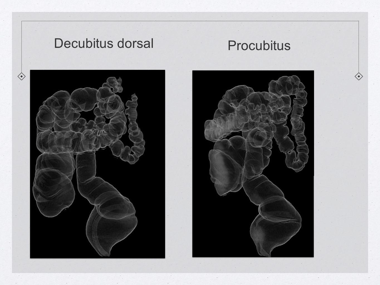 Decubitus dorsal Procubitus