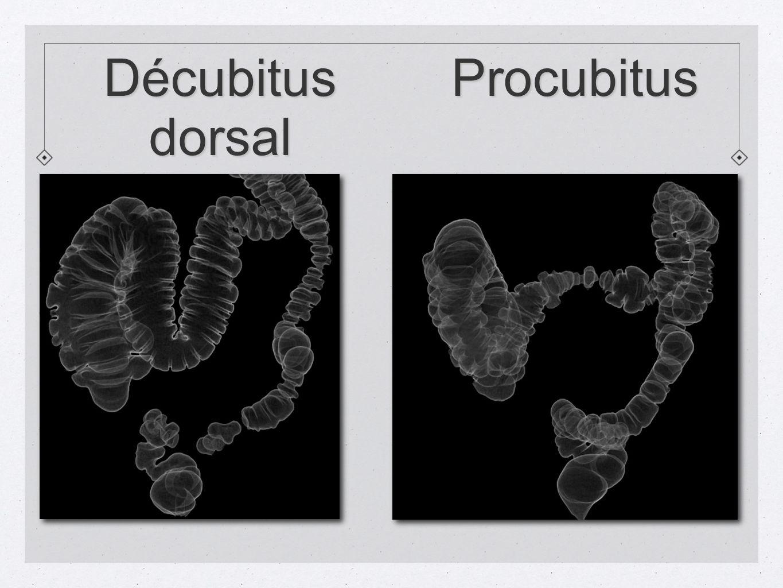 Décubitus dorsal Procubitus