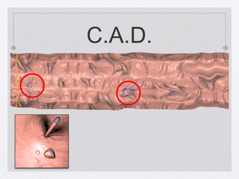 C.A.D.