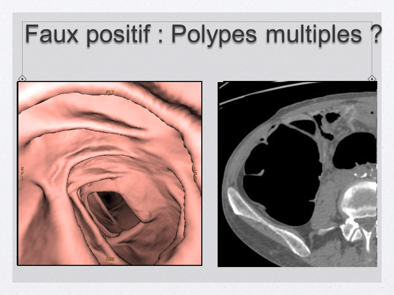 Faux positif : Polypes multiples ?