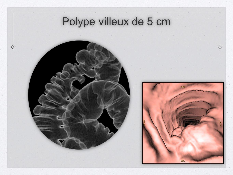 Polype villeux de 5 cm