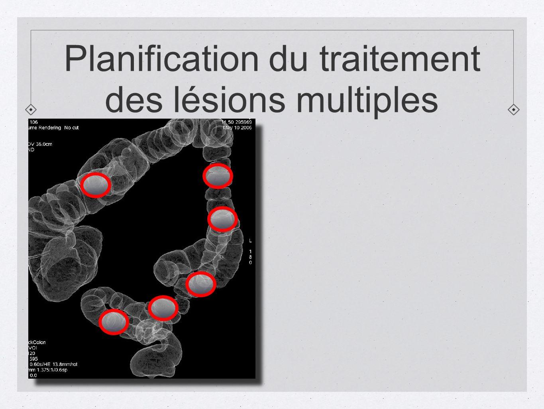 Planification du traitement des lésions multiples