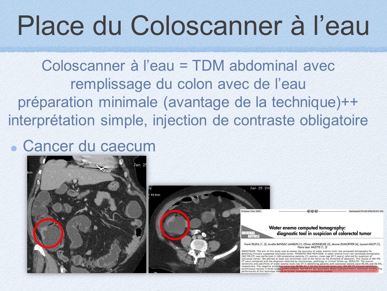 Place du Coloscanner à leau Cancer du caecum Coloscanner à leau = TDM abdominal avec remplissage du colon avec de leau préparation minimale (avantage de la technique)++ interprétation simple, injection de contraste obligatoire