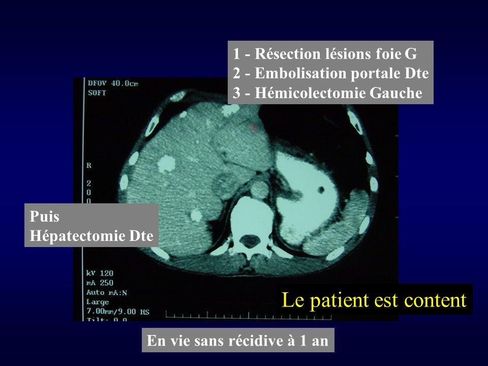 1 - Résection lésions foie G 2 - Embolisation portale Dte 3 - Hémicolectomie Gauche Puis Hépatectomie Dte En vie sans récidive à 1 an Le patient est content