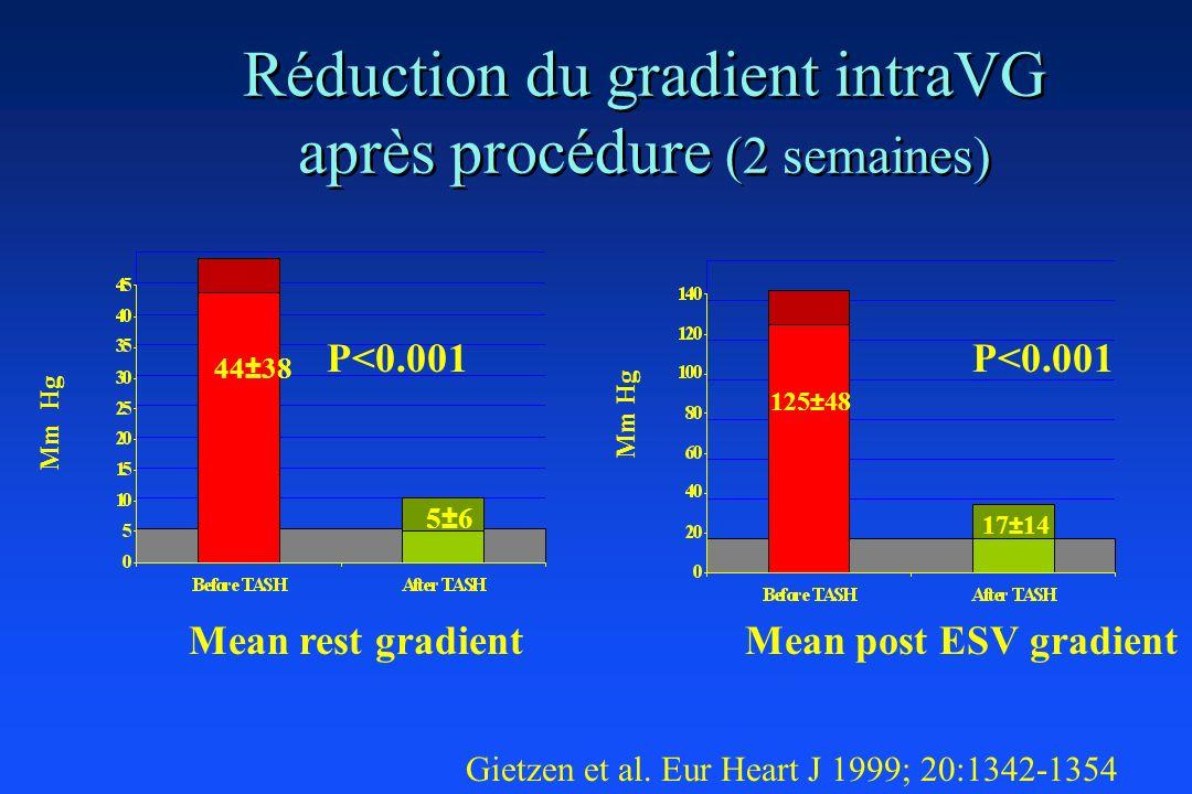 Réduction du gradient intraVG après procédure (2 semaines) Gietzen et al. Eur Heart J 1999; 20:1342-1354 Mm Hg 44±38 5±6 125±48 17±14 P<0.001 Mean res