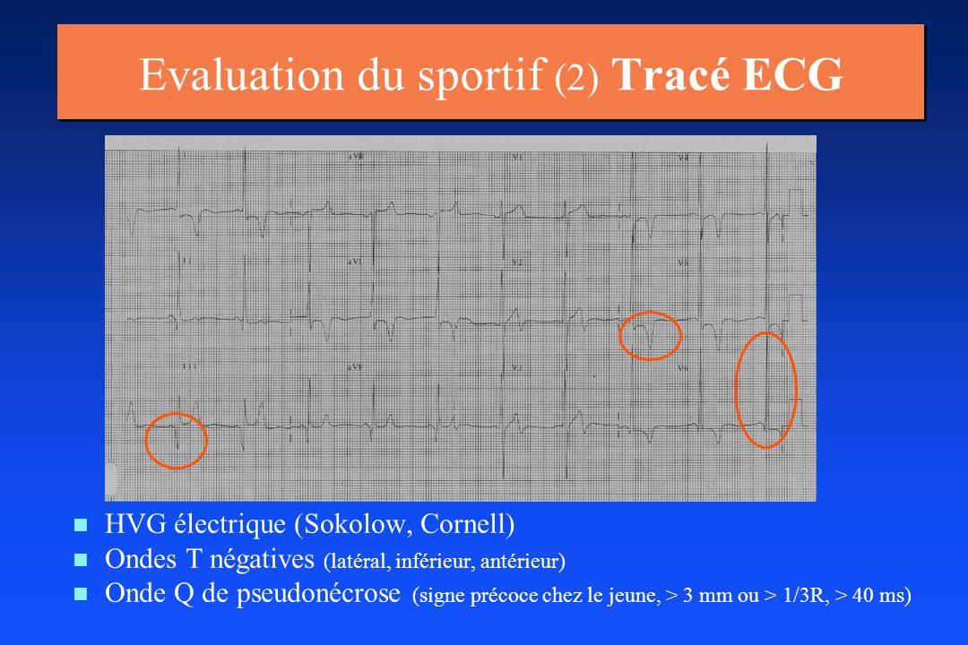 n n HVG électrique (Sokolow, Cornell) n n Ondes T négatives (latéral, inférieur, antérieur) n n Onde Q de pseudonécrose (signe précoce chez le jeune,