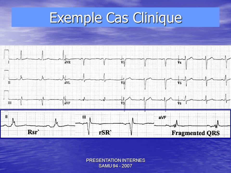 PRESENTATION INTERNES SAMU 94 - 2007 Exemple Cas Clinique