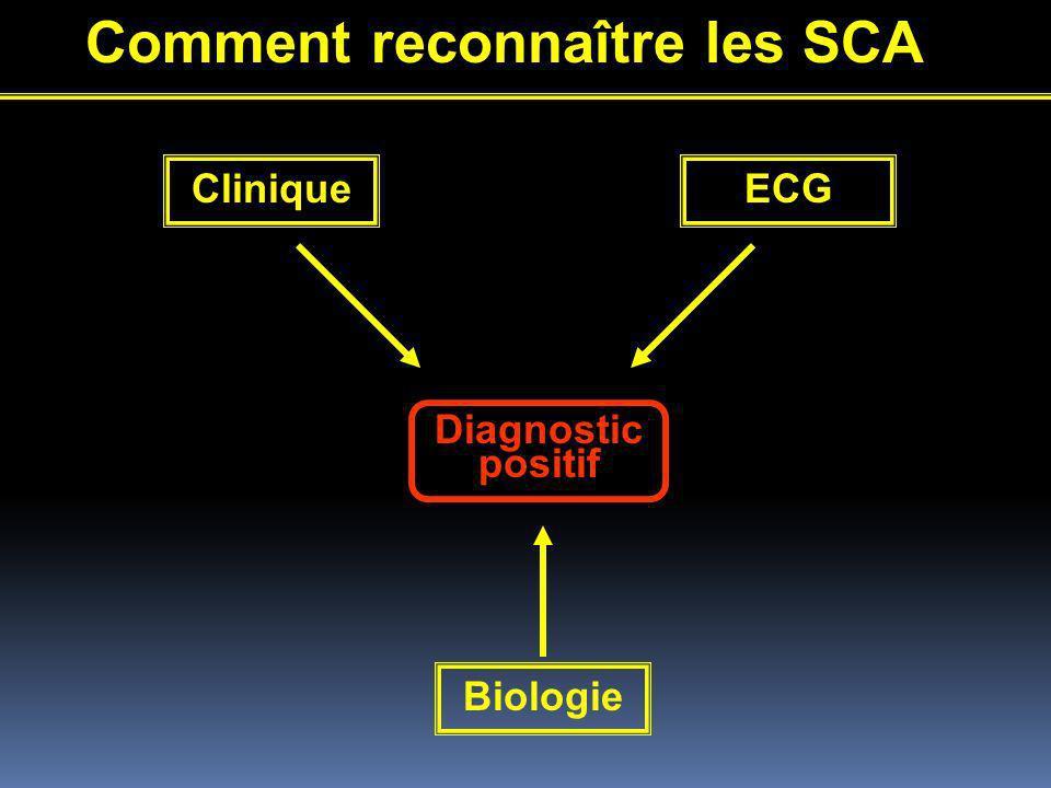 Comment reconnaître les SCA CliniqueECG Biologie Diagnostic positif