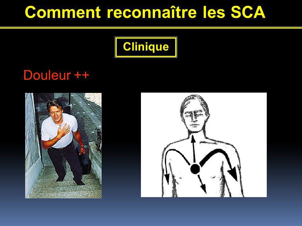 Comment reconnaître les SCA Clinique Douleur ++