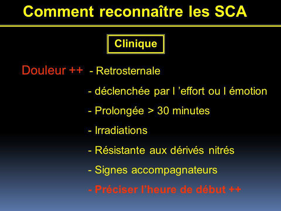 Comment reconnaître les SCA Clinique Douleur ++ - Retrosternale - déclenchée par l effort ou l émotion - Prolongée > 30 minutes - Irradiations - Résistante aux dérivés nitrés - Signes accompagnateurs - Préciser lheure de début ++