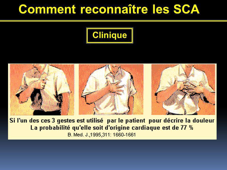 Comment reconnaître les SCA Clinique