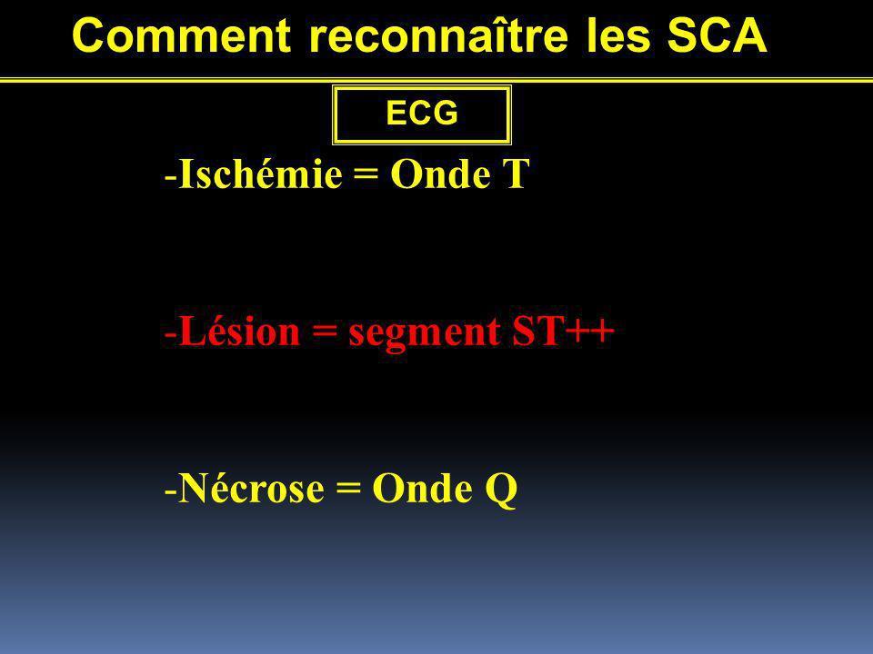 -Ischémie = Onde T -Lésion = segment ST++ -Nécrose = Onde Q Comment reconnaître les SCA ECG