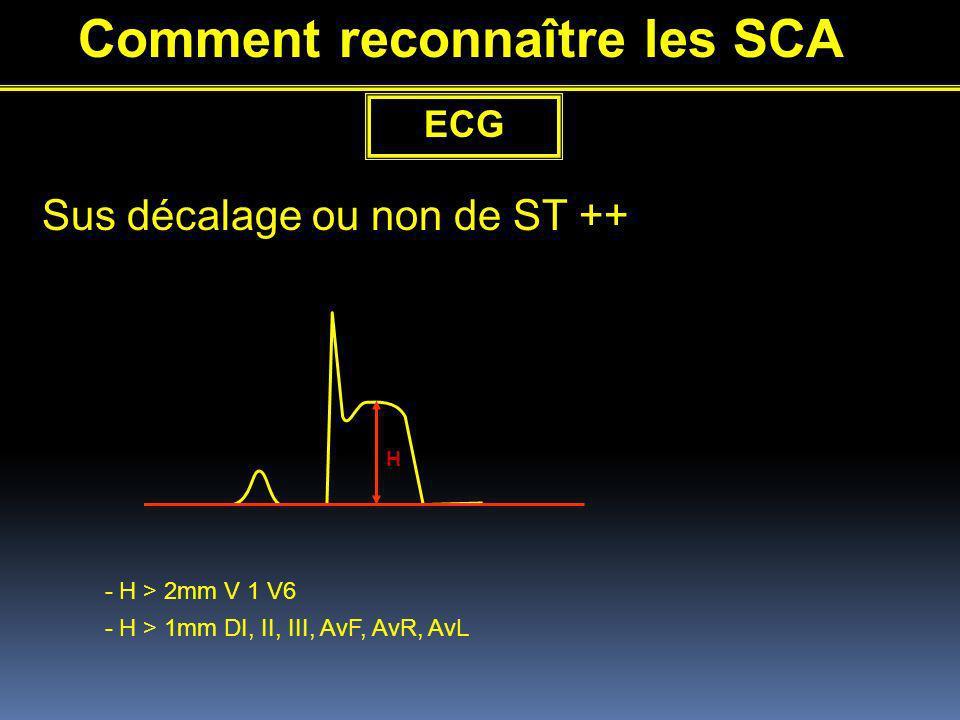 Comment reconnaître les SCA ECG Sus décalage ou non de ST ++ H - H > 2mm V 1 V6 - H > 1mm DI, II, III, AvF, AvR, AvL