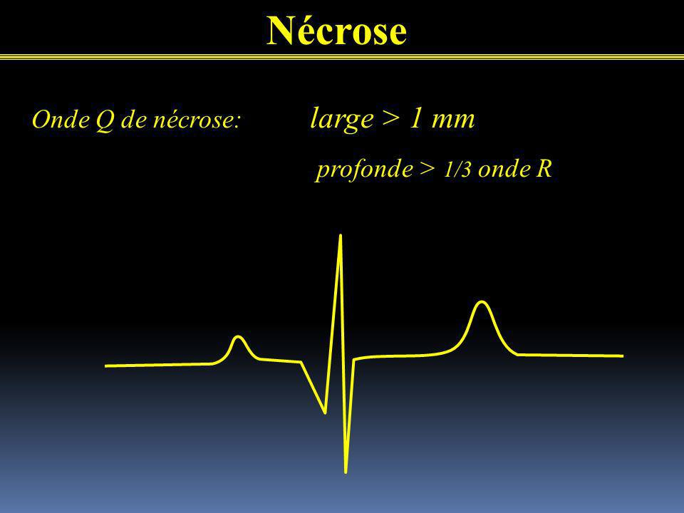 Nécrose Onde Q de nécrose: large > 1 mm profonde > 1/3 onde R