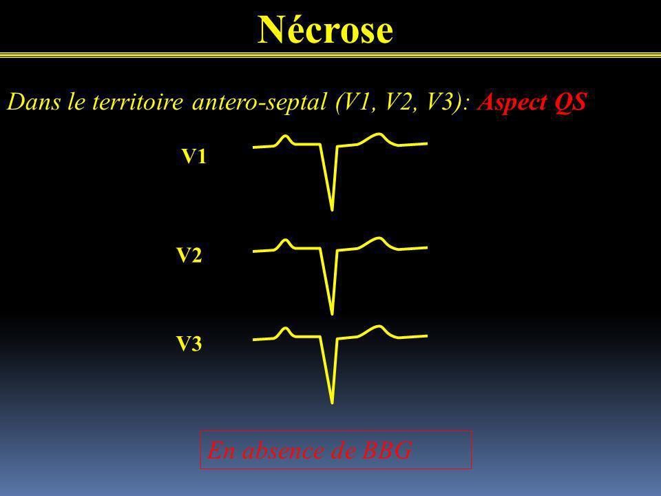 Nécrose Dans le territoire antero-septal (V1, V2, V3): Aspect QS V1 V2 V3 En absence de BBG