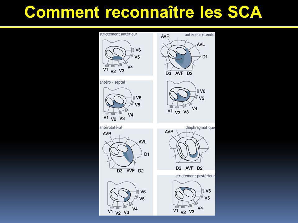 Comment reconnaître les SCA