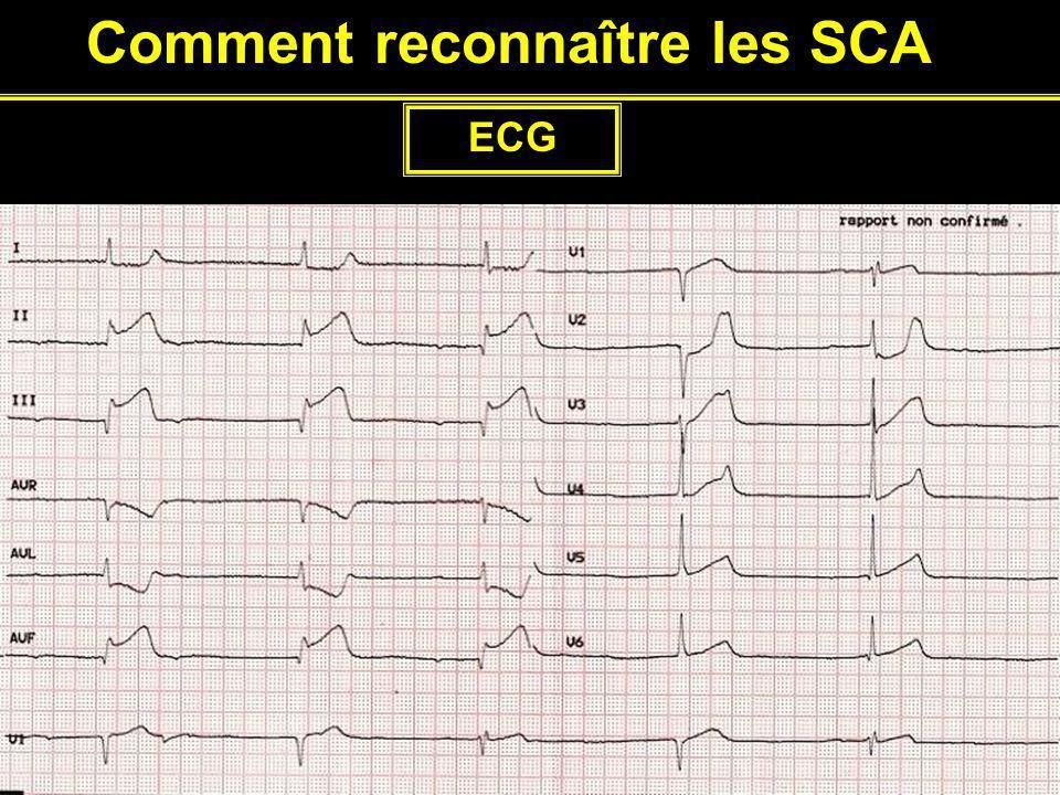 Comment reconnaître les SCA ECG