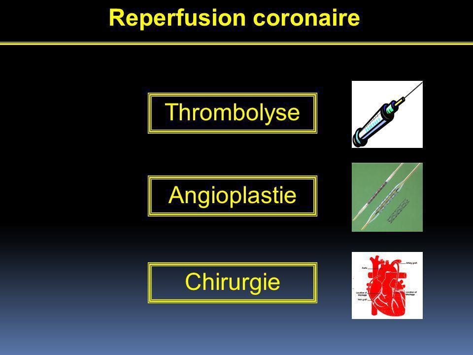 Reperfusion coronaire Thrombolyse Angioplastie Chirurgie