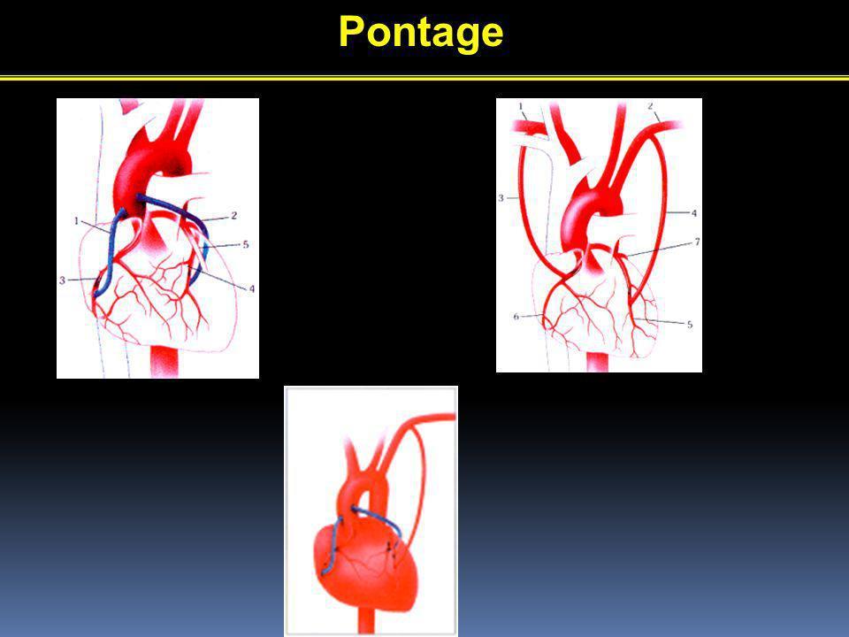 Pontage