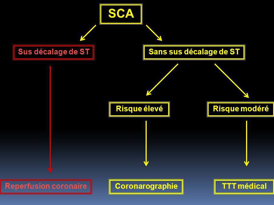 SCA Sus décalage de ST Reperfusion coronaire Sans sus décalage de ST Risque élevéRisque modéré TTT médicalCoronarographie