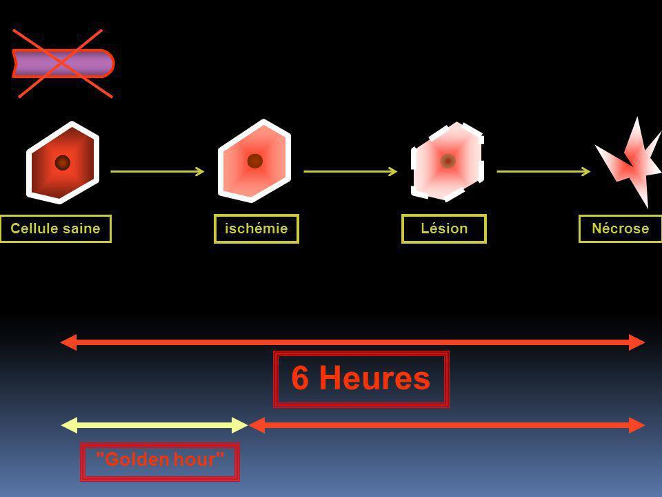 Cellule saine ischémieLésion Nécrose Clinique = 0 ECG = 0 Biologie = 0 Clinique = Douleur ECG = onde T Biologie = 0 Clinique = Douleur ECG = segment ST Biologie = Troponine Clinique = Douleur ECG = onde Q Biologie = Enzymes + Troponine 6 Heures Golden hour
