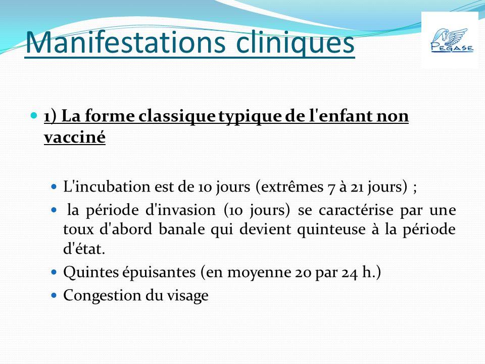 Manifestations cliniques 1) La forme classique typique de l enfant non vacciné L incubation est de 10 jours (extrêmes 7 à 21 jours) ; la période d invasion (10 jours) se caractérise par une toux d abord banale qui devient quinteuse à la période d état.