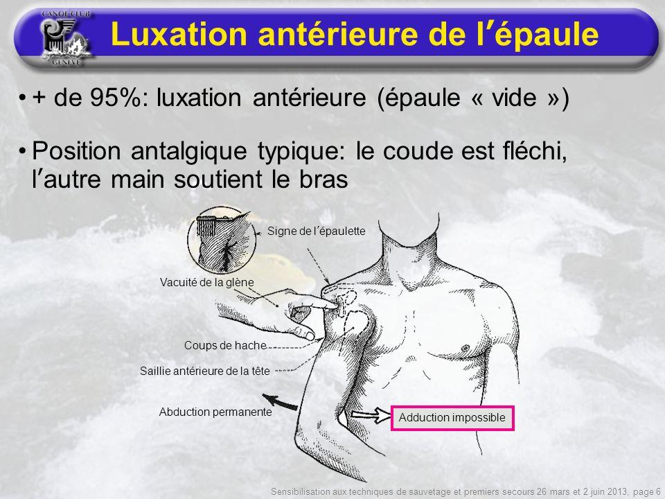Sensibilisation aux techniques de sauvetage et premiers secours 26 mars et 2 juin 2013, page 6 Luxation antérieure de lépaule + de 95%: luxation antér