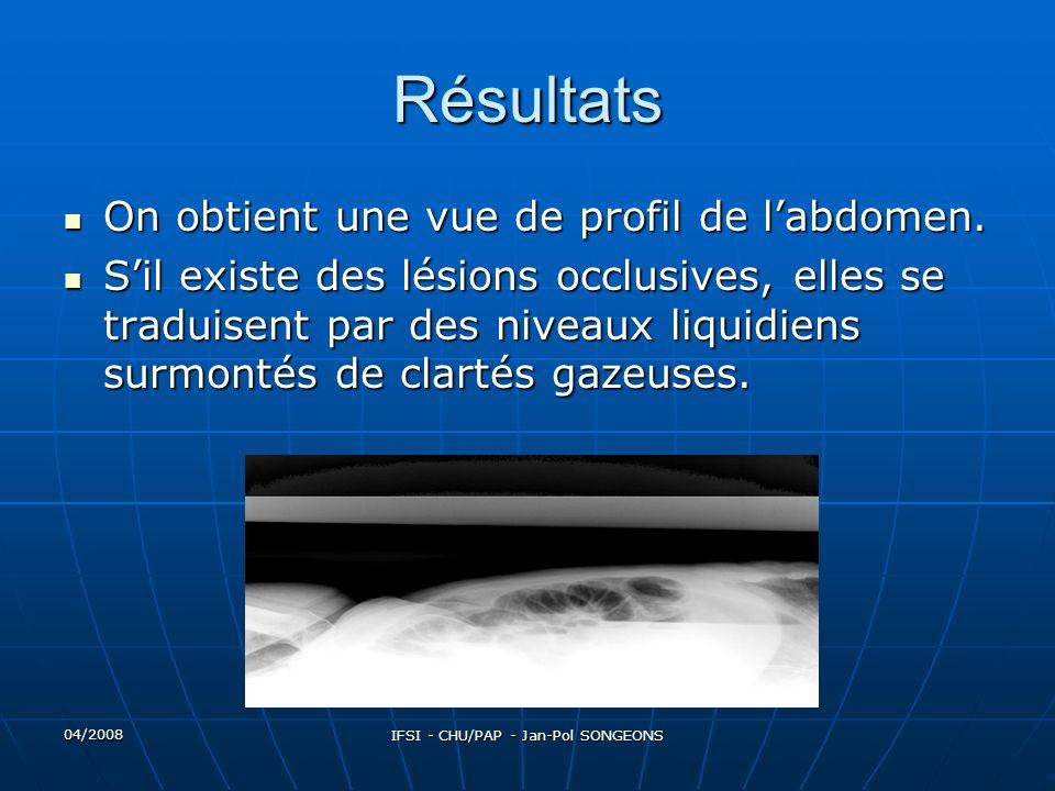 04/2008 IFSI - CHU/PAP - Jan-Pol SONGEONS Résultats On obtient une vue de profil de labdomen.