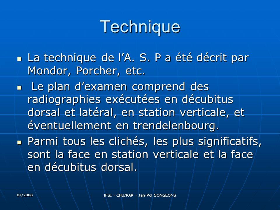 04/2008 IFSI - CHU/PAP - Jan-Pol SONGEONS Décubitus dorsal et RD Vertical Tube au-dessus de la table, Potter centrer sur lombilic.