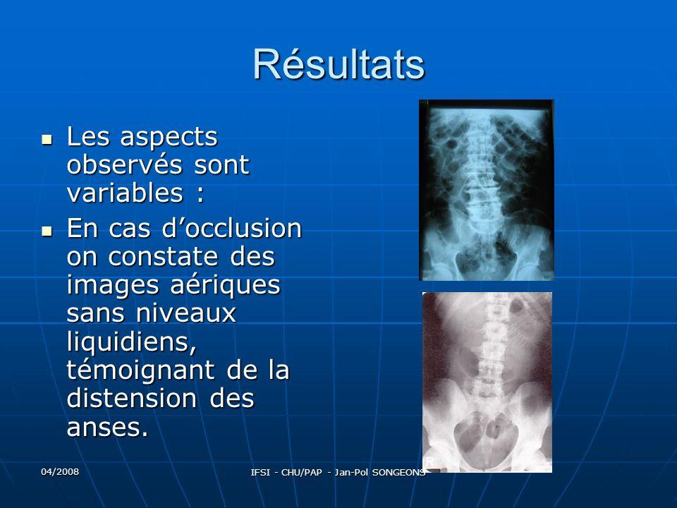 04/2008 IFSI - CHU/PAP - Jan-Pol SONGEONS Résultats On voit parfois des calculs opaques.