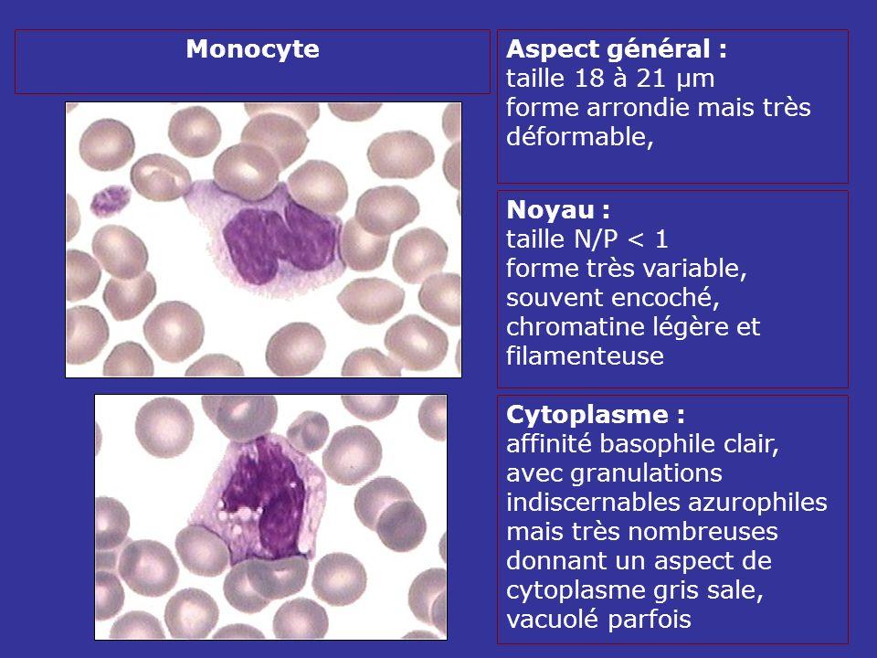 Aspect général : taille 18 à 21 µm forme arrondie mais très déformable, Noyau : taille N/P < 1 forme très variable, souvent encoché, chromatine légère et filamenteuse Cytoplasme : affinité basophile clair, avec granulations indiscernables azurophiles mais très nombreuses donnant un aspect de cytoplasme gris sale, vacuolé parfois Monocyte