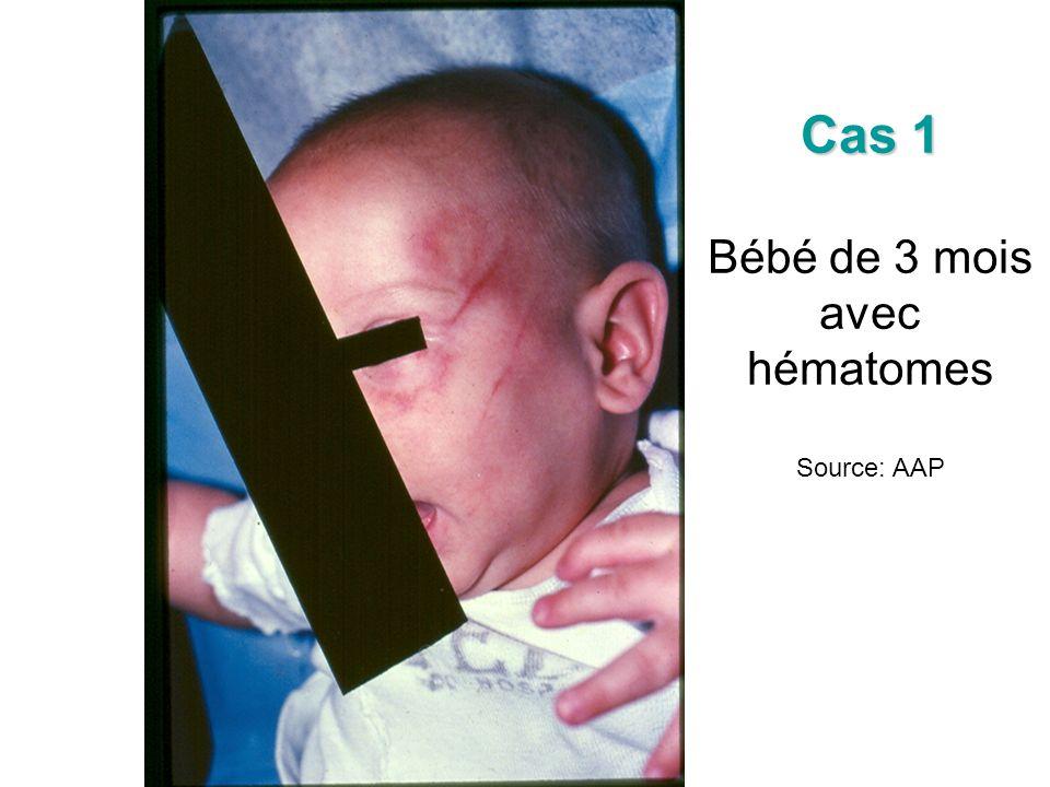 Cas 1 Bébé de 3 mois avec hématomes Source: AAP