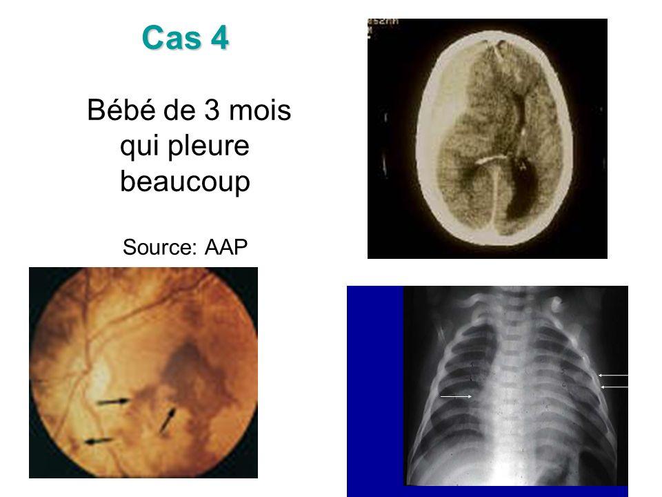 Cas 4 Cas 4 Bébé de 3 mois qui pleure beaucoup Source: AAP