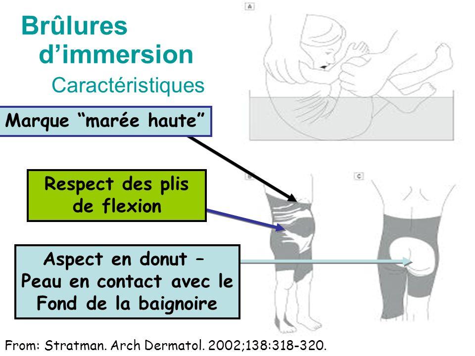 Brûlures dimmersion Caractéristiques Respect des plis de flexion Aspect en donut – Peau en contact avec le Fond de la baignoire Marque marée haute From: Stratman.