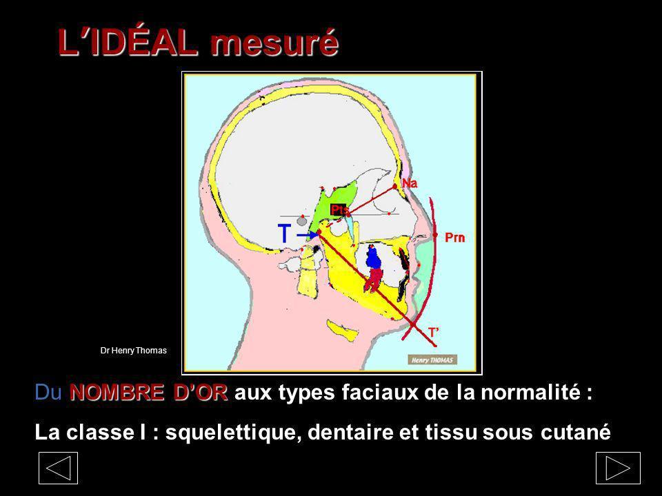 LIDÉAL mesuré NOMBRE DOR Du NOMBRE DOR aux types faciaux de la normalité : La classe I : squelettique, dentaire et tissu sous cutané Dr Henry Thomas