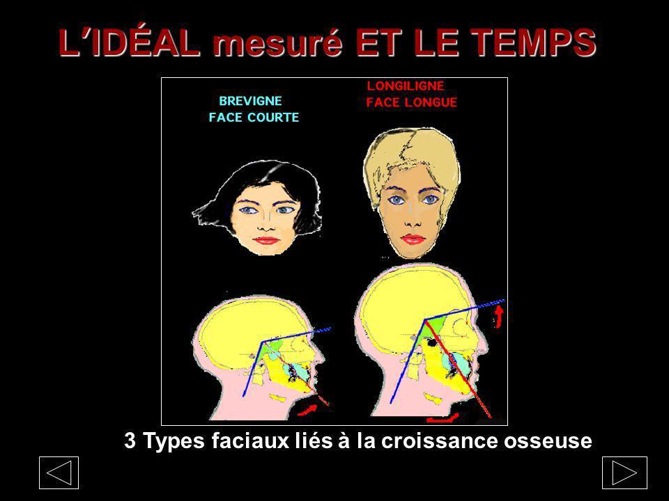LIDÉAL mesuré ET LE TEMPS 3 Types faciaux liés à la croissance osseuse