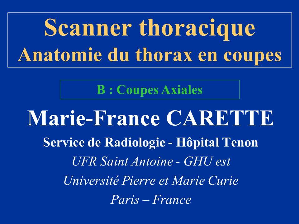 VCSVCS TVBCG TVBC D SCD JID JIG Coupe / 4 vaisseaux artériels = T2 Coupe / 3 vaisseaux artériels = T3 Coupe / 2 crosses (aorte et azygos) = T4 Coupe / Carène et AP dt et g = T5 Coupe / Atrium G = T6 T7 Coupe / 4 cavités = T8 Coupe / orifice VCI = T9 Coupe / Hiatus Oesophagien = T10 Croisement des piliers = T11 Coupe / Orifice aortique = T12 / L1 Piliers du diaphragme : G=L2 / D=L3