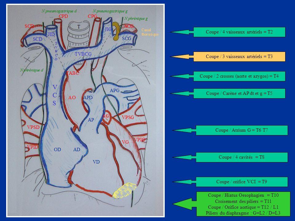 VCSVCS TVBCG TVBC D SCD JID JIG Coupe / 4 vaisseaux artériels = T2 Coupe / 3 vaisseaux artériels = T3 Coupe / 2 crosses (aorte et azygos) = T4 Coupe /