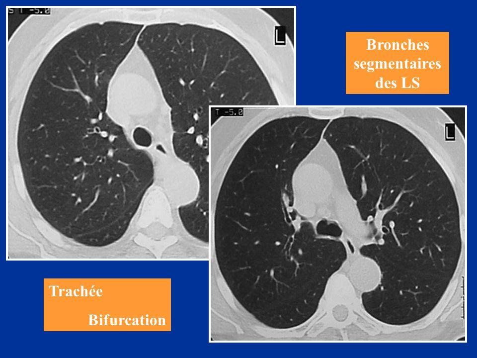 Trachée Bifurcation Bronches segmentaires des LS