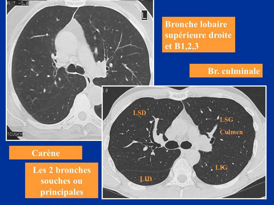 Carène Les 2 bronches souches ou principales Bronche lobaire supérieure droite et B1,2,3 Br. culminale LSD LIG LSG Culmen LID