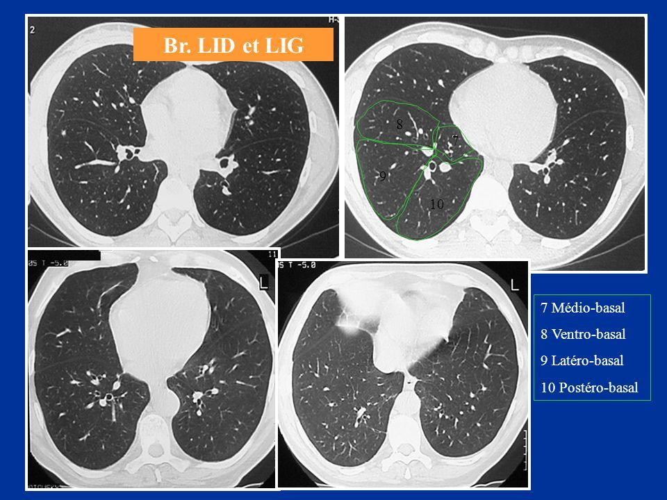 Br. LID et LIG 7 Médio-basal 8 Ventro-basal 9 Latéro-basal 10 Postéro-basal 7 8 9 10