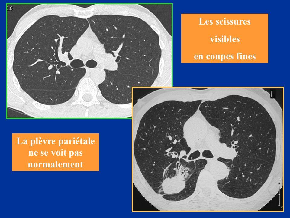 La plèvre pariétale ne se voit pas normalement Les scissures visibles en coupes fines
